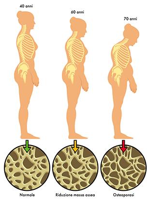 1. Evolução da osteoporose e rarefação óssea