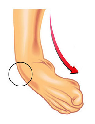 1. Entorse de tornozelo