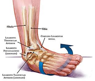 2. Torção de tornozelo